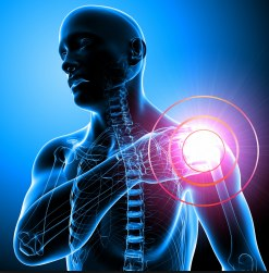 Como evitar las lesiones de hombro