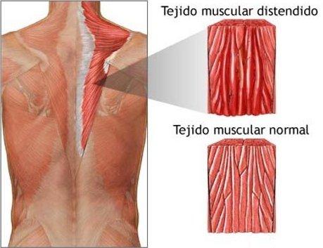 El tiron muscular. Una lesion frecuente en el padel