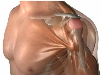 Lesion de padel. Manguito de los rotadores. Supraespinoso