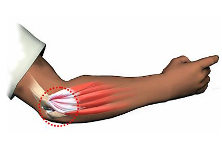 Palas de padel antivibraciones_una_forma_de_evitar_lesiones