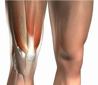 Sobrecarga muscular en el padel
