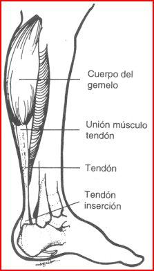 Ruptura muscular en padel